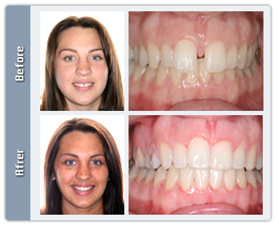 Gap Transformation - Perfect Smile!