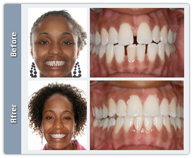 Orthodontist NYC Reviews - Before & After Photos - Amazing ...