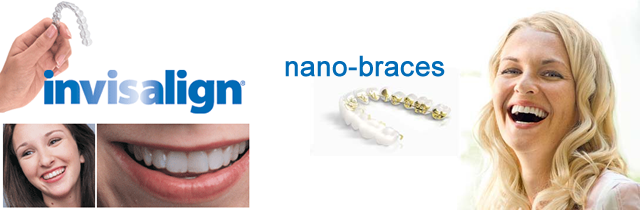invisalgin and nano-braces