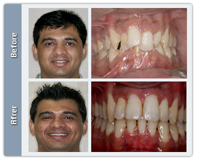 Overlapped Teeth Transformation